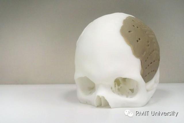 """RMIT""""3D打印""""创造美好未来-""""私人订制""""人体骨骼!0"""