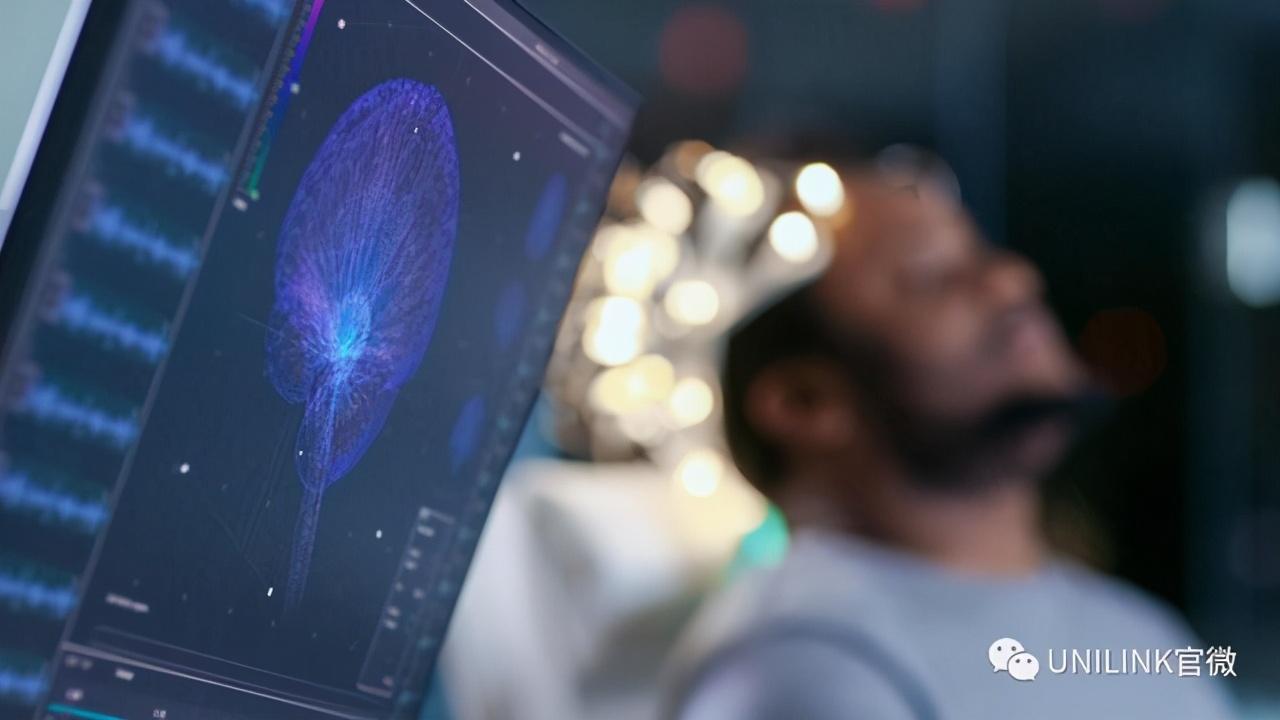 莫纳什大学研究人员通过机器学习加快癫痫诊断速度
